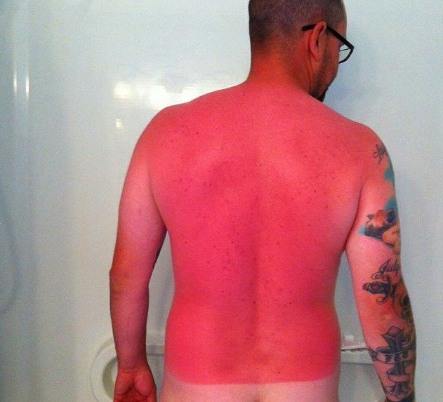 sunburn fail